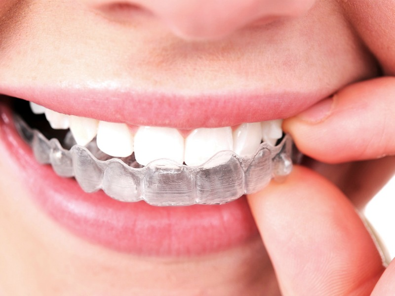 Invisalign - Straight Teeth Without Train Tracks